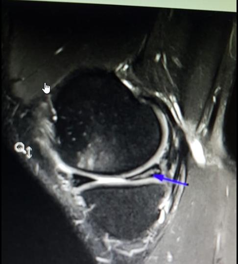 MRI Aufnahme des linken Knies