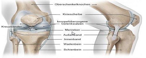 Warum mein Knie schmerzt und ich es operieren muss