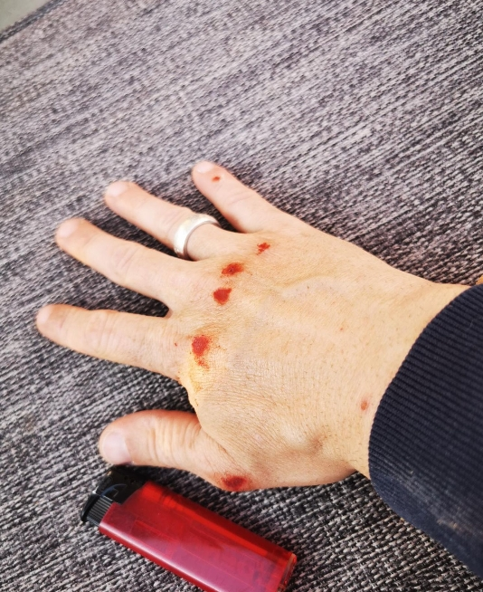 Verletzungen an den rechten Hand